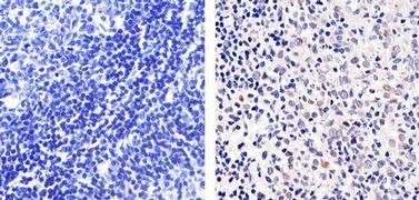 E2F1 Antibody (MA5-14344)