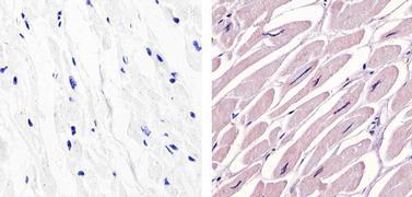 c-Abl Antibody (MA5-14398)