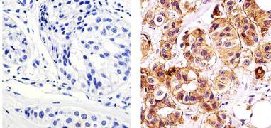E-cadherin Antibody (MA5-14458)