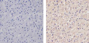 Apolipoprotein B Antibody (MA5-14740)