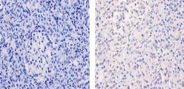 Glucocorticoid Receptor Antibody (MA5-15801)