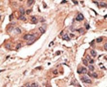 MAGEH1 Antibody (PA5-13166)