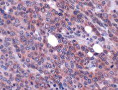 MALT1 Antibody (PA5-32480)