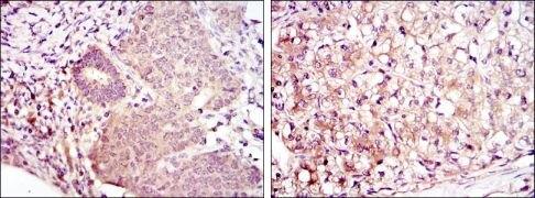 MEK6 Antibody (MA5-15809)