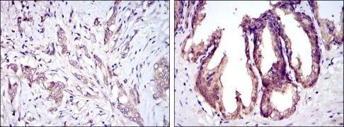 ASK1 Antibody (MA5-15861)