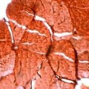 Myoglobin Antibody (PA1-38247)