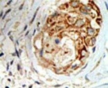 MBD3 Antibody (PA5-11168)