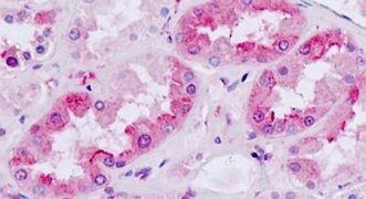 MC4R Antibody (PA5-33926)