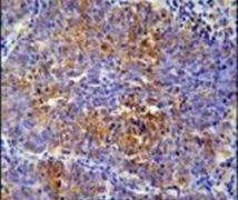 MCAF2 Antibody (PA5-24011)