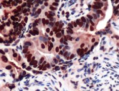 MCM2 Antibody (PA5-32485)