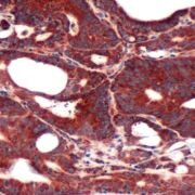 FABP3 Antibody (PA5-32487)