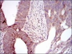 MELK Antibody (MA5-17120)