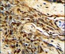 MGMT Antibody (PA5-14226)