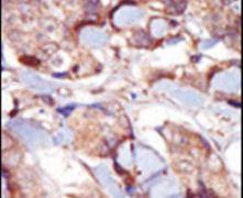 MLCK Antibody (PA5-15176)