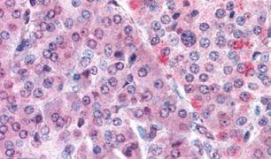 MLEC Antibody (PA5-32923)