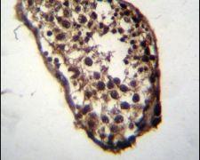 MLF1 Antibody (PA5-25908)