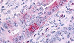 MLK1 Antibody (PA5-33917)