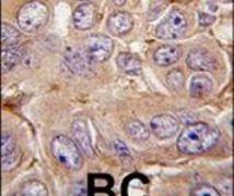 MMP12 Antibody (PA5-13181)