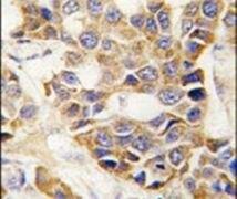 MMP9 Antibody (PA5-13199)