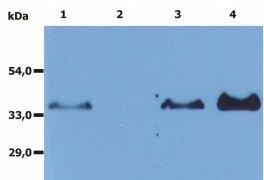 CD20 Antibody (MA1-19008)