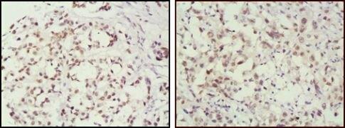MSH2 Antibody (MA5-15740)