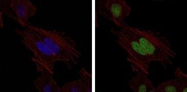 MSH6 Antibody (MA5-17129)