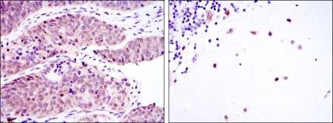 MSI2 Antibody (MA5-15821)