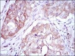 MTHFR Antibody (MA5-15844)
