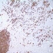 MUC1 Antibody (MA1-35690)