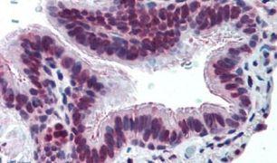 MUC13 Antibody (PA5-32937)