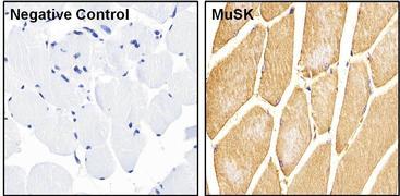 MUSK Antibody (PA1-1741)