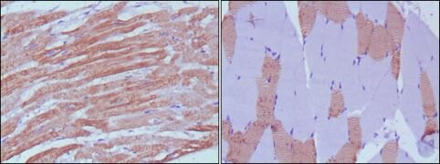 MYL3 Antibody (MA5-15514)