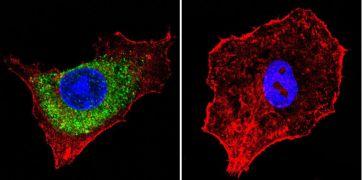 IGF2R Antibody (MA1-066)