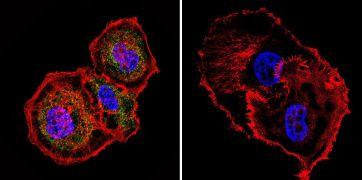 Mesothelioma Antibody (MA2-310)