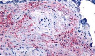 NET1 Antibody (PA5-33964)
