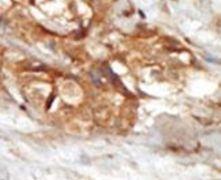 NIK Antibody (PA5-15178)