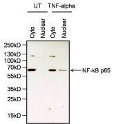 NFkB p65 Antibody (PA1-186)
