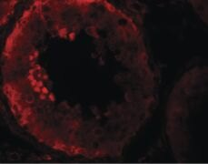 NALP9 Antibody (PA5-21019)