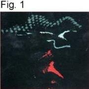 uNOS Antibody (PA1-039)