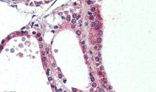 NR1D2 Antibody (PA5-32948)