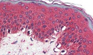 NR1D2 Antibody (PA5-34002)