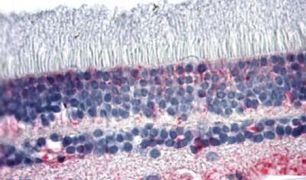 PNR Antibody (PA5-34004)