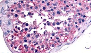 GCNF Antibody (PA5-34022)