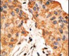 NRG1 Antibody (PA5-13204)