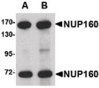 NUP160 Antibody (PA5-20565)