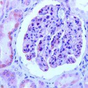 Nephrin Antibody (PA5-32515)