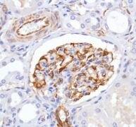 Nestin Antibody (MA5-16421)