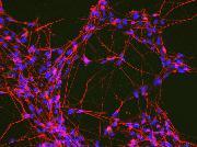 iPSC-derived neurons.
