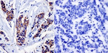 NF1 Antibody (MA1-085)