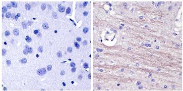 NEFL Antibody (13-0400)